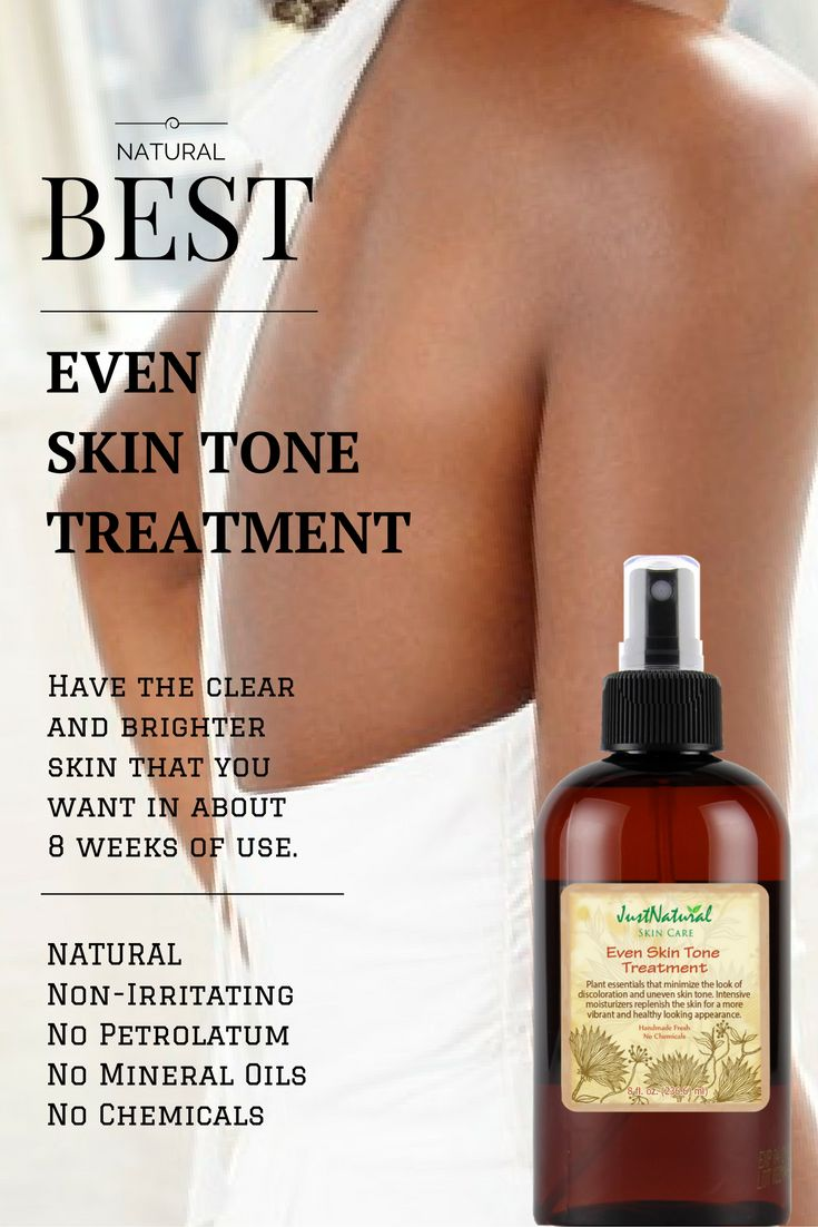 https://justnutritive.com/even-skin-tone-treatment/  -Fades the look of dark spots, age spots, sun spots and discoloration all over body, especially on problem areas such as knees, elbows and feet.  Have the clear and brighter skin that you want in about 8 weeks of use.