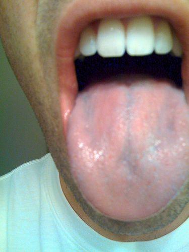 A nyelved elárulja betegséged! Vizsgáld meg önmagad!