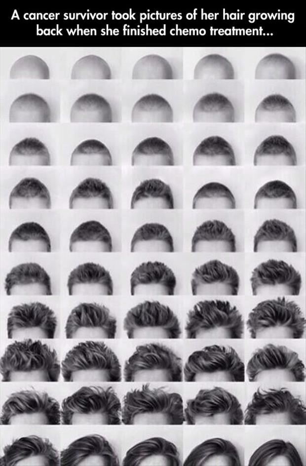 A cancer survivor took pictures of her hair growing back when she finished chemo. Amazing piece.