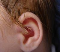 Una de las enfermedades infantiles mas comunes en los bebés son las infecciones en el oído. Este remedio natural ayuda a eliminar el líquido en el oído medio característico de una infección. Al eliminar el líquido la presión es menor y por lo tanto se alivia el dolor de oído.