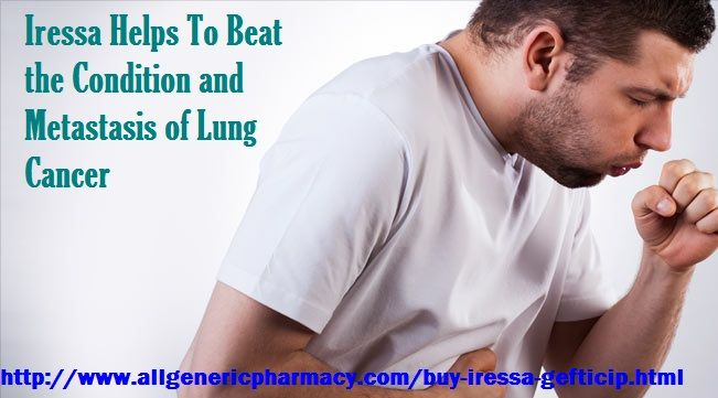 Iressa is a renowned brand for Generic Gefitinib, which is a prominent medication for treating the condition of lung cancer and by declining and inhibiting the growth of cancer cells.Buy Iressa online at very cheapest price in United States.