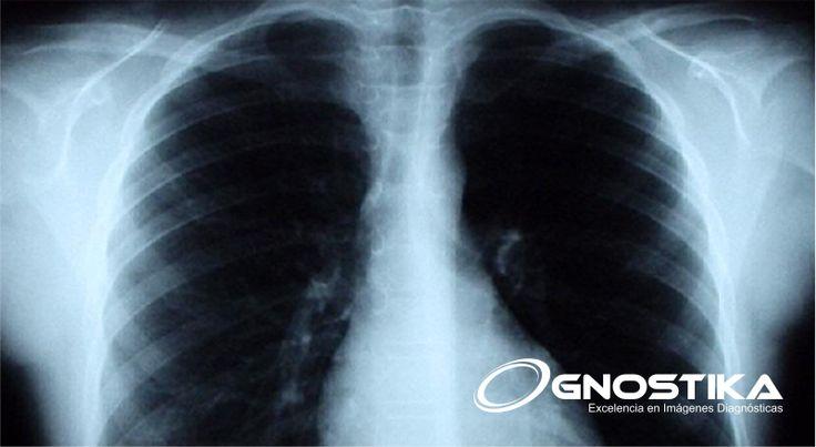 Algunas de las preguntas más frecuentes que se le realizan a los profesionales de las imágenes diagnósticas son: ¿es cierto que si me realizo una #radiografía puedo contraer cáncer?, o ¿al hacerme una #mamografía corro riesgo de desarrollar cáncer de tiroides?