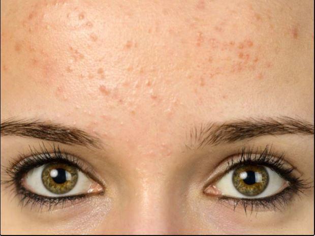 حبوب تحت الجلد In 2021 Forehead Acne Types Of Acne Different Types Of Acne