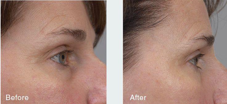 Krém proti pigmentovým skvrnám - Lumablanc® Cream   Přírodní kosmetika Pevonia