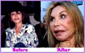 awful plastic surgery --> http://awfulplasticsurgeryreview.com//  SHE IS AS BAD AS THE CAT LADY!! THE ONE THAT WANTS TO LOOK LIKE ONE!! BUT THIS ONE , YOU CAN'T UNDERSTAND AT ALL WHEN SHE TALKS!!! WOW!!!