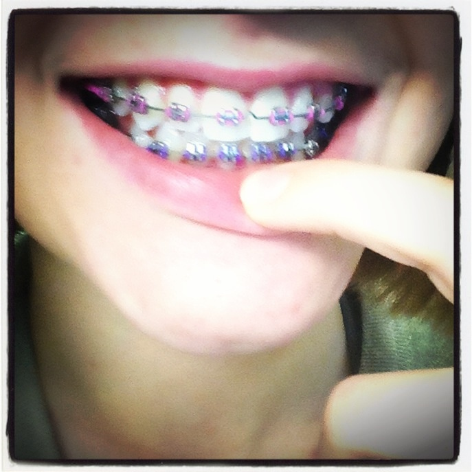Pink and purple braces