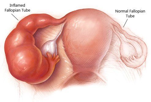 Simply put, pelvic inflammatory disease or PID is an infection of a woman's reproductive organs, all of which are situated in the pelvis in the lower abdomen. It is usually the complication of a sexually transmitted infection or STI such as chlamydia and gonorrhea, especially if left untreated. However, other causes of infections may also …