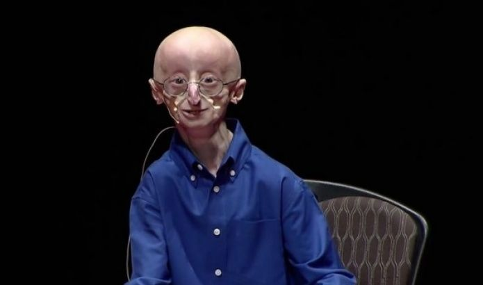 Right Before Dying From A Rare, Chronic Condition, This Amazing Boy Revealed His Secret To Happiness