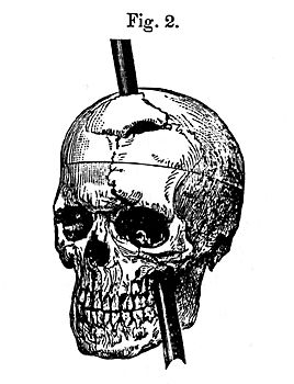 This picture depicts what happened to Phineas Gage, a man whose frontal lobe was pierced during a mining accident. Surprisingly enough, he survived, yet his personality changed from mild mannered to more aggressive and irreverent. This is how scientists found out that the prefrontal cortex consists of planning, moral judgement, and emotional control.