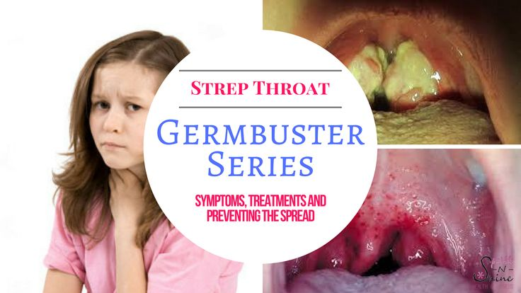 Strep Throat-Signs, Symptoms and Treatments