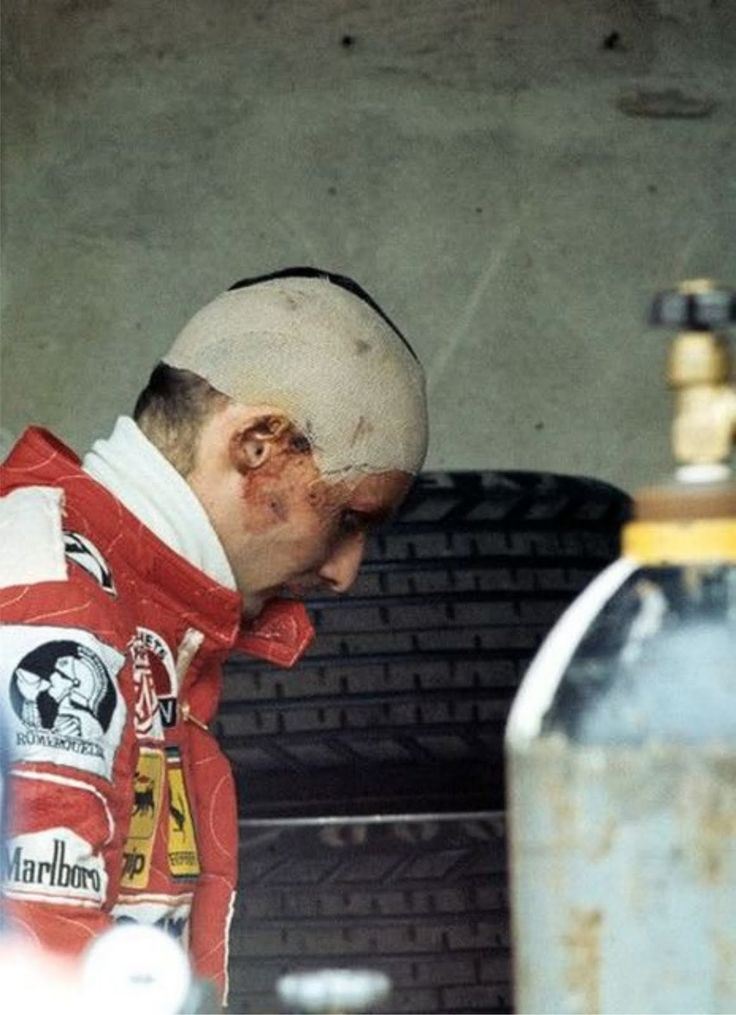 determination; a still wounded Niki Lauda in the pits during the 1976 Italian Grand Prix at Monza, only a month after his near fatal accident at the NürburgringNiki would manage a stunning 4th place in his Ferrari 312T2