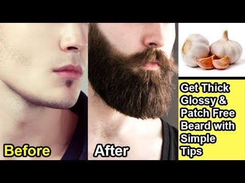 8 Tips To Grow Beard Fast Get Rid Of Patches Urdu Hindi Https Www Fashionhowtip Com Post 8 Tips To Grow Grow Beard Beard Growing Tips Grow Beard Faster