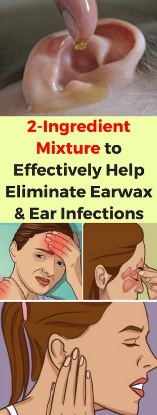 2-Ingredient Mixture to Effectively Help Eliminate Earwax and Ear Infections - infacter