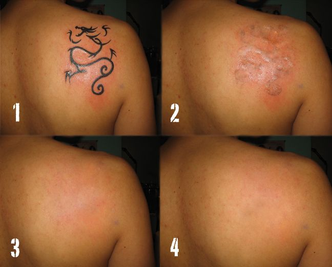 Tattoo Removal Scars photos