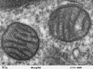 How trauma leads to inflammatory response: Mitochondria may be at root of dangerous complications from injury