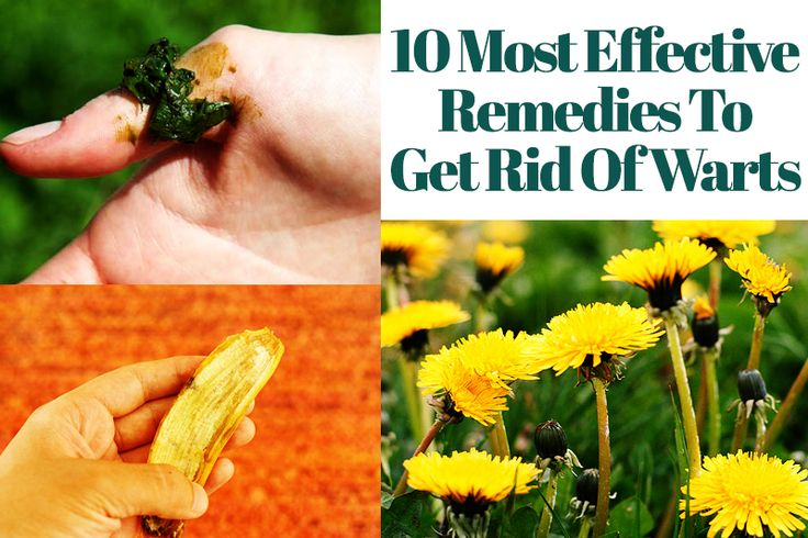 6 10 Most Effective Remedies To Get Rid Of Warts