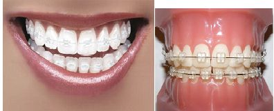 Clear (Porcelain) Braces- An Alternative To Traditional Metal Braces  http://www.oasisdentalmilton.com/blog/clear-porcelain-braces-an-alternative-to-traditional-metal-braces/