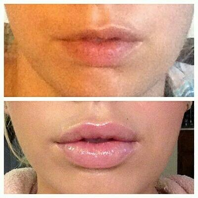 Juvederm lips, before and after