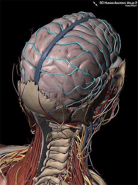 Circle of willis brain arteries
