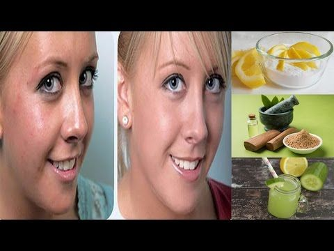 How to treat Acne Scars fast and easily with Lemon at home -  CLICK HERE for the Acne No More program #acne #acnecure #acnetips #acnecare How to treat Acne Scars fast and easily with Lemon at home Lemon is a natural acid that clean, heal and whitening your skin clearly. Lemon is also friendly with other skin's food such as honey, papaya, lemon grass... - #Acne