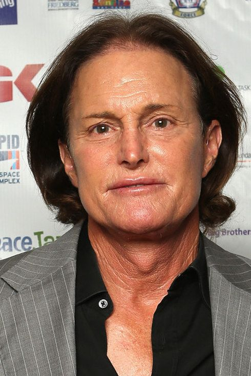 The 27 Most Extreme Celebrity Plastic Surgeries Of All Time what has happened to this man,