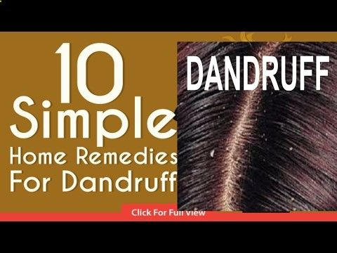Miracle Cure For Dandruff Hair Fall360p - CLICK HERE for The No. 1 Itchy Scalp, Dandruff, Dry Flaky Sore Scalp, Scalp Psoriasis Book! #dandruff #scalp #psoriasis hair loss treatment, remove dandruff, Cure baldness, cure hair loss, Grow Long Hair, Cure Hair Baldness, गंजापन, Home Remedy For Baldness, cure alopecia, hair loss, hair fall, ... - #Dandruff
