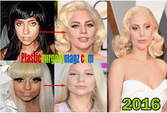 Lady Gaga Before And After Plastic Surgery Lady Gaga