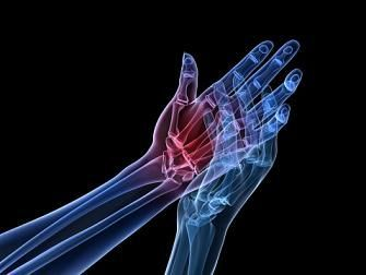Exercises for Ganglion Cyst in Wrist
