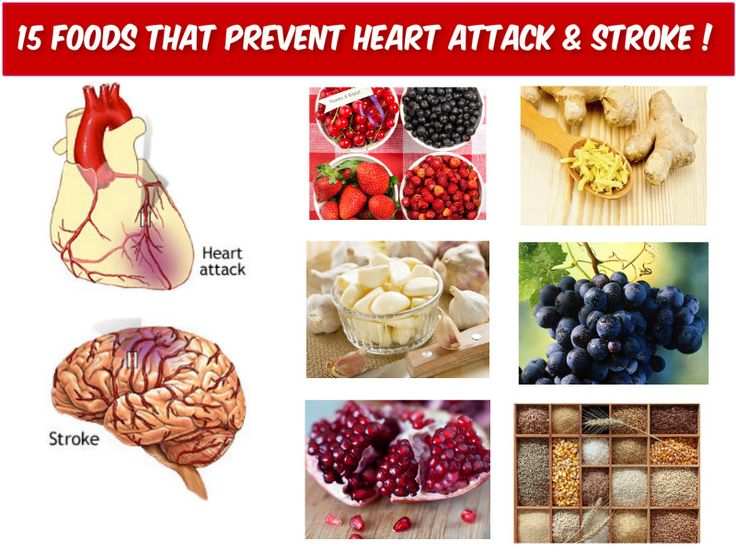 Apa itu stroke hemoragik?