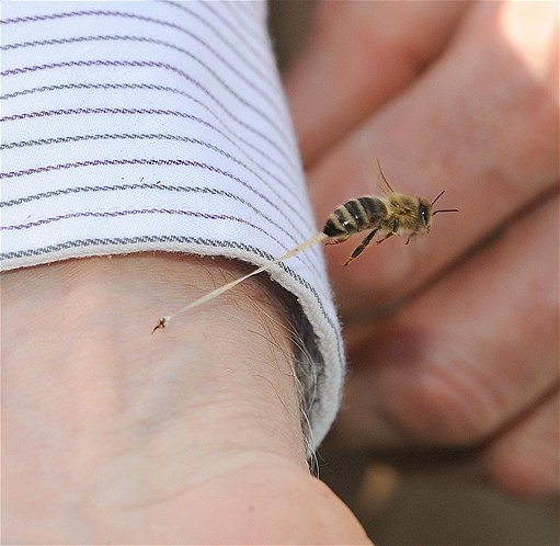 June 15, 2012: Amazing shot shows honeybee's abdominal tissue being torn away after stinging photographer's pal. 'As far as I know, nobody's been able to record anything like this,' the photographer & bee enthusiast told a Calif. paper. (©Kathy Keatley Garvey)