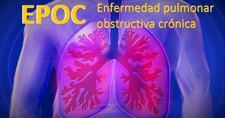 http://ift.tt/2gEezq5 http://ift.tt/2gE7ypm  La publicación reciente del informe 2017 de la Inicitativa Mundial contra la Enfermedad Pulmonar Obstructiva Crónica (GOLD por sus siglas en inglés) representa un verdadero cambio en el paradigma del tratamiento de la EPOC ya que recomienda el uso combinado de broncodilatadores de larga duración como primera línea de tratamiento para la mayoría de los pacientes con (EPOC) sintomática independientemente del riesgo de exacerbación.  El Informe GOLD…