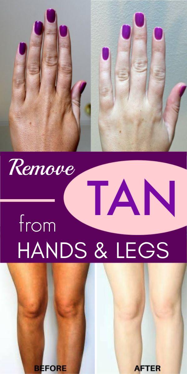 100% effektive Methode, die sofort Bräune von Händen und Füßen entfernt – Skin