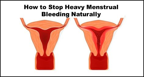20 Herbal Remedies for Excessive Bleeding during Periods