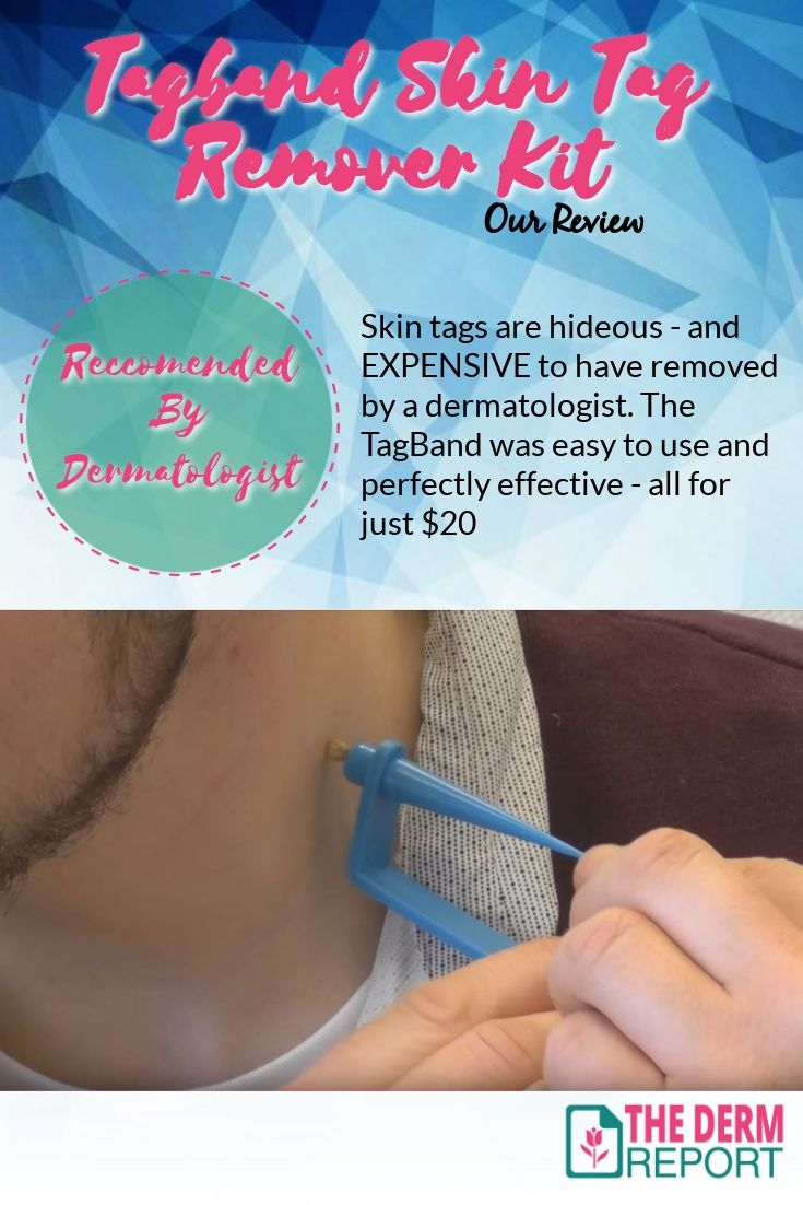 Skin Tag Removal Device Deluxe Skin Tag And Mole Remover On Sale