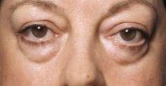 Τα μάτια δεν αντανακλούν απλά τα συναισθήματά μας, αλλά είναι και πολύ ευαίσθητα στο περιβάλλον. Ο χρόνος διαλέγει την περιοχή γύρω από τα μάτια για να κάν