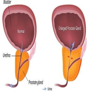 Herbal Remedies For Benign Prostatic Hyperplasia | http://www.searchhomeremedy.com/herbal-remedies-for-benign-prostatic-hyperplasia/