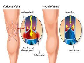 Varicosités et Veinules