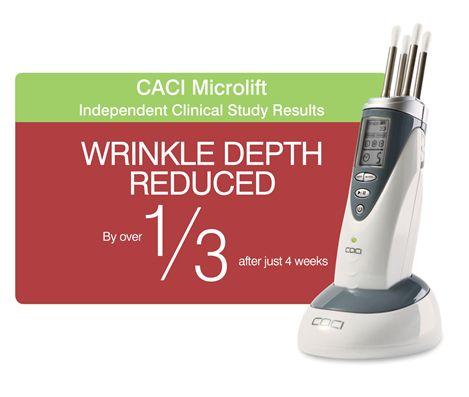 #microlift #nonsurgical #facelift #caci #sandsmk www.sandsmk.co.uk #wrinkleytratment