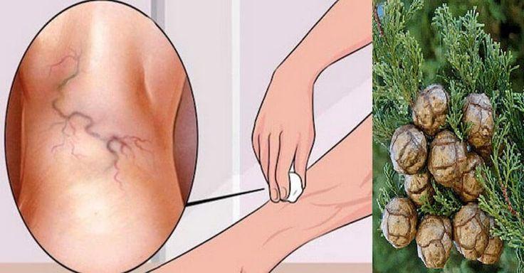 Cypřišový olej se řadí mezi nejsilnější přírodní látky proti křečovým žilám. Jeho účinek spočívá v tom, že stimuluje cirkulaci krve, potlačuje záněty, posiluje stěny cév a podporuje regeneraci cévních chlopní. Díky uvedeným efektům brání hromadění krve v nohách a vzniku křečových žil. Kromě prevence je však dokáže i velmi dobře léčit. Jak aplikovat cypřišový olej …