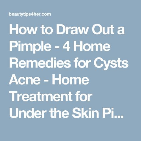 How to Draw Out a Pimple - 4 Home Remedies for Cysts Acne - Home Treatment for Under the Skin Pimples - Natural Beauty Skin Care