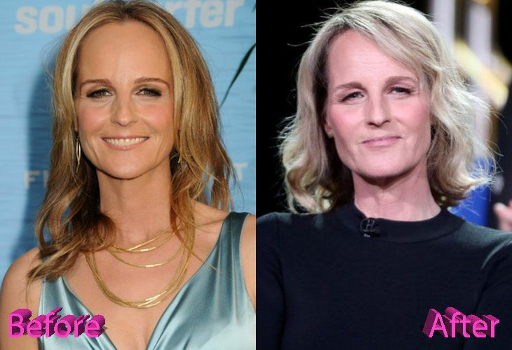Helen Hunt Before And After Cosmetic Surgery Celebrity