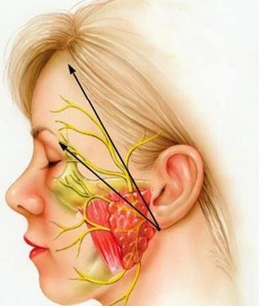 Parálisis+facial+por+estrés