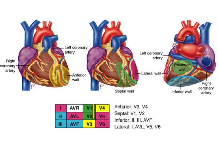 Coronary arteries, and correlating ECG leads in MI