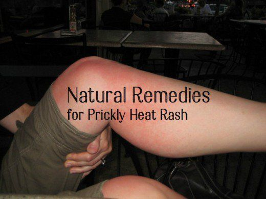 Heat rash or prickly heat is  a common problem experienced during summer months.  Excessive sweating gives rise to bacterial infection that result in blisters and tiny red bumps on the skin. Curing prickly heat rashes with natural remedies are very effective.