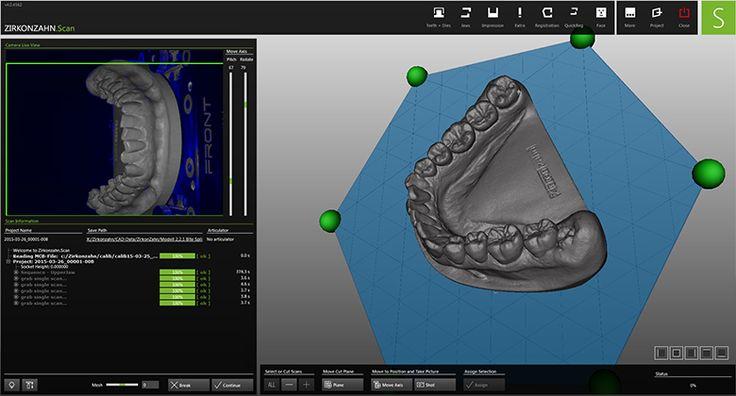 Zirkonzahn.Scan scanning software