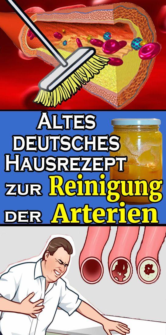 Altes deutsches Hausrezept zur Reinigung der Arterien