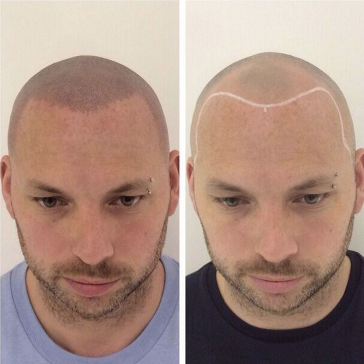 18 best before and after scalp micro pigmentation images for Shave before tattoo
