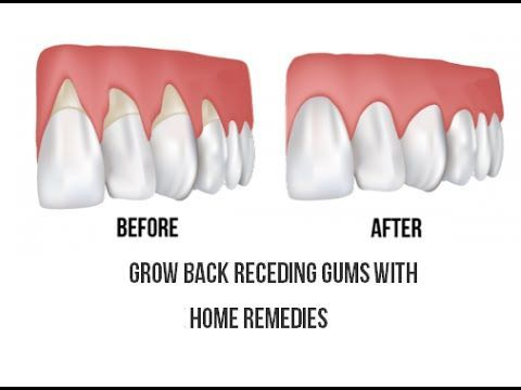 how to help your gums grow back
