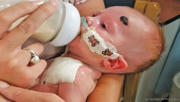 free run toddler size 11 Baby who waged a fierce battle for her life is now recovering