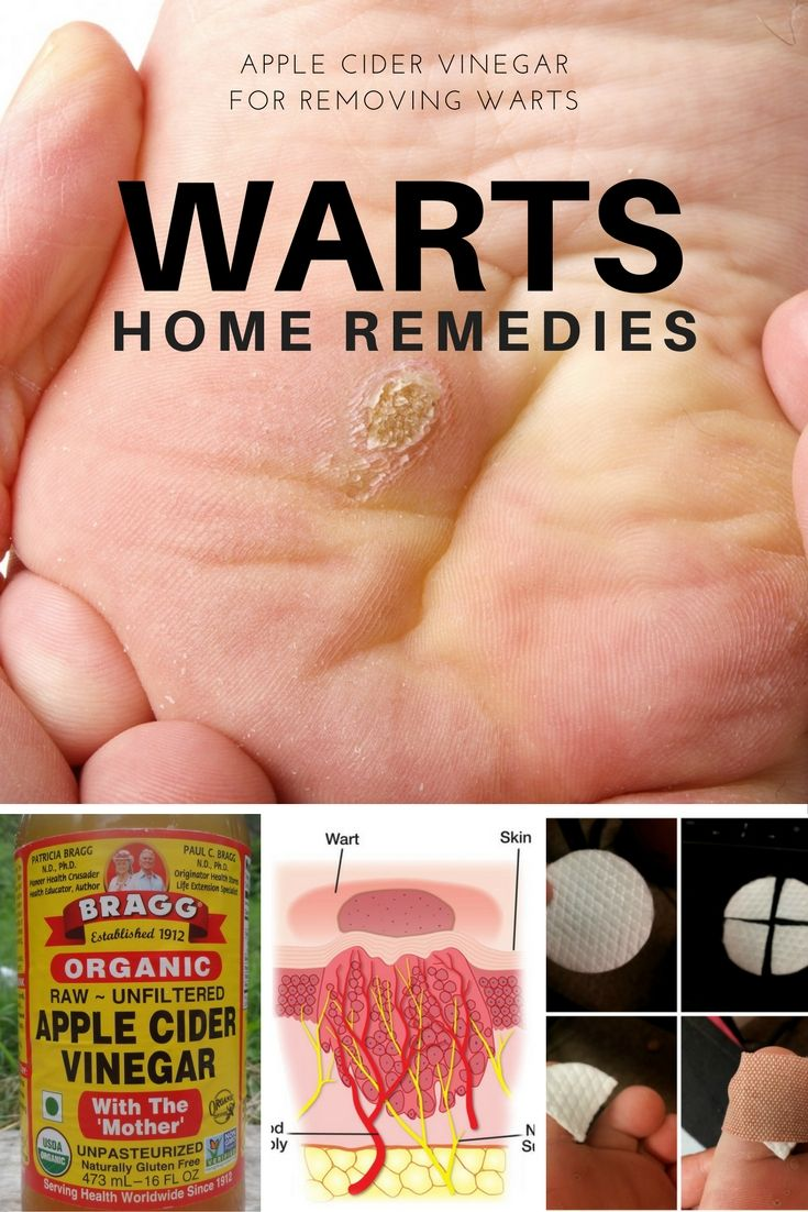 How to use Apple Cider Vinegar for Warts